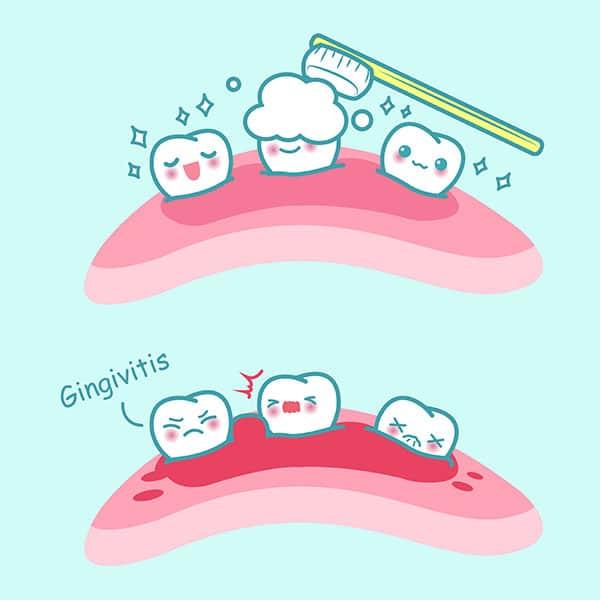 Periodontal Dentistry Etobicoke
