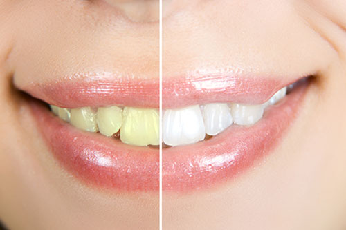 Tooth Whitening Etobicoke